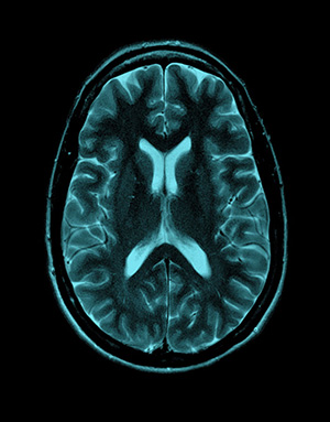 MRI diagnostic near Seattle WA